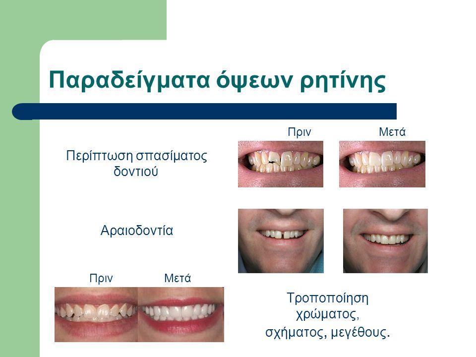Παραδείγματα όψεων ρητίνης ΠρινΜετά Περίπτωση σπασίματος δοντιού Αραιοδοντία Τροποποίηση χρώματος, σχήματος, μεγέθους. ΠρινΜετά