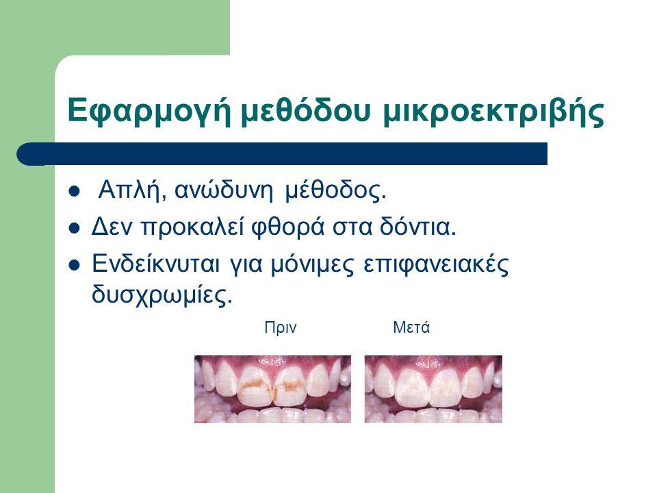 Εφαρμογή μεθόδου μικροεκτριβής Απλή, ανώδυνη μέθοδος. Δεν προκαλεί φθορά στα δόντια. Ενδείκνυται για μόνιμες επιφανειακές δυσχρωμίες. ΠρινΜετά