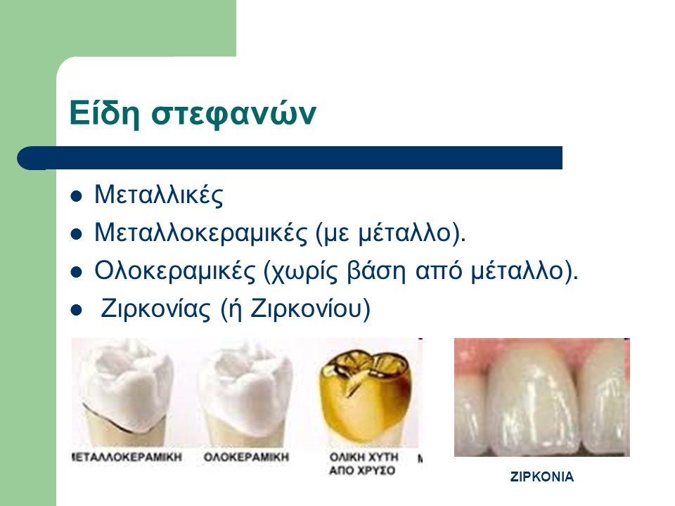 Είδη στεφανών Μεταλλικές Μεταλλοκεραμικές (με μέταλλο). Ολοκεραμικές (χωρίς βάση από μέταλλο). Ζιρκονίας (ή Ζιρκονίου) ΖΙΡΚΟΝΙΑ