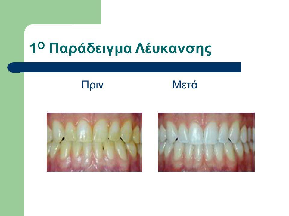 Ενδείξεις Σε δόντια απονευρωμένα.Σε σπασμένα δόντια.