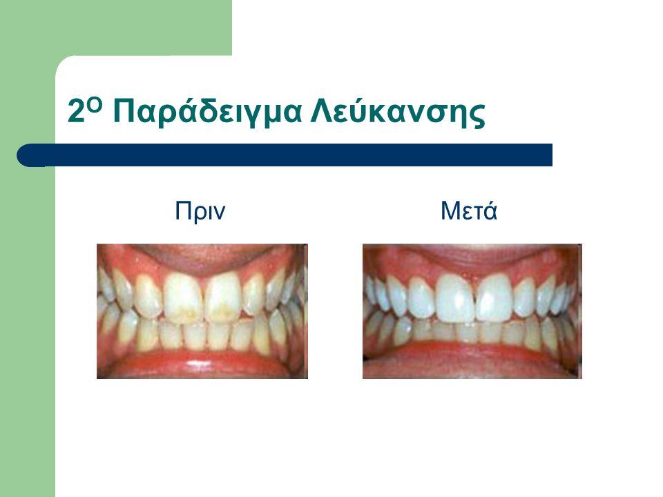 Παραδείγματα όψεων ρητίνης ΠρινΜετά Περίπτωση σπασίματος δοντιού Αραιοδοντία Τροποποίηση χρώματος, σχήματος, μεγέθους.