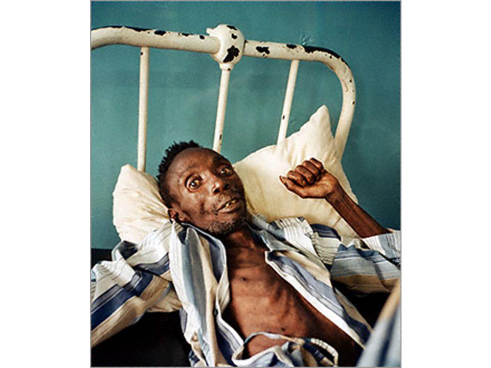 Ο πρώτος βεβαιωμένος θάνατος από AIDS σημειώθηκε στα 1959 στην Αφρική (διαγνώστηκε αναδρομικά με εξέταση ιστών του θύματος), ενώ υπάρχει και ένας δεύτερος που υποστηρίζεται ότι προκλήθηκε από τη νόσο την ίδια χρονιά στην Αγγλία.