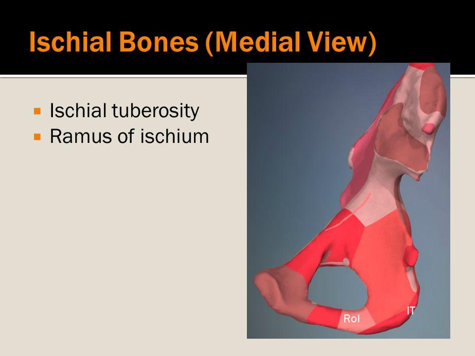  Ischial tuberosity  Ramus of ischium IT RoI
