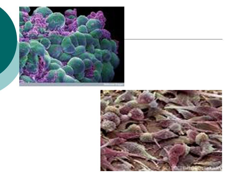 Συχνότητα Ευρώπη: > 24% των θανάτων στους άνδρες,  20% των θανάτων στις γυναίκες  H πιο συχνή μορφή καρκίνου στους άνδρες είναι ο καρκίνος του λάρυγγα και στις γυναίκες ο καρκίνος του μαστού.