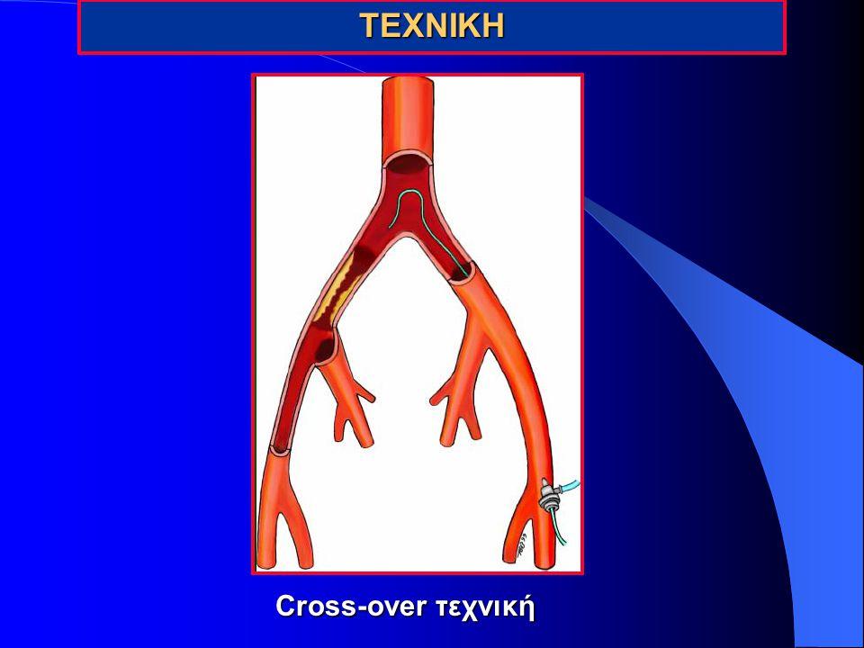 ΤΕΧΝΙΚΗ Cross-over τεχνική