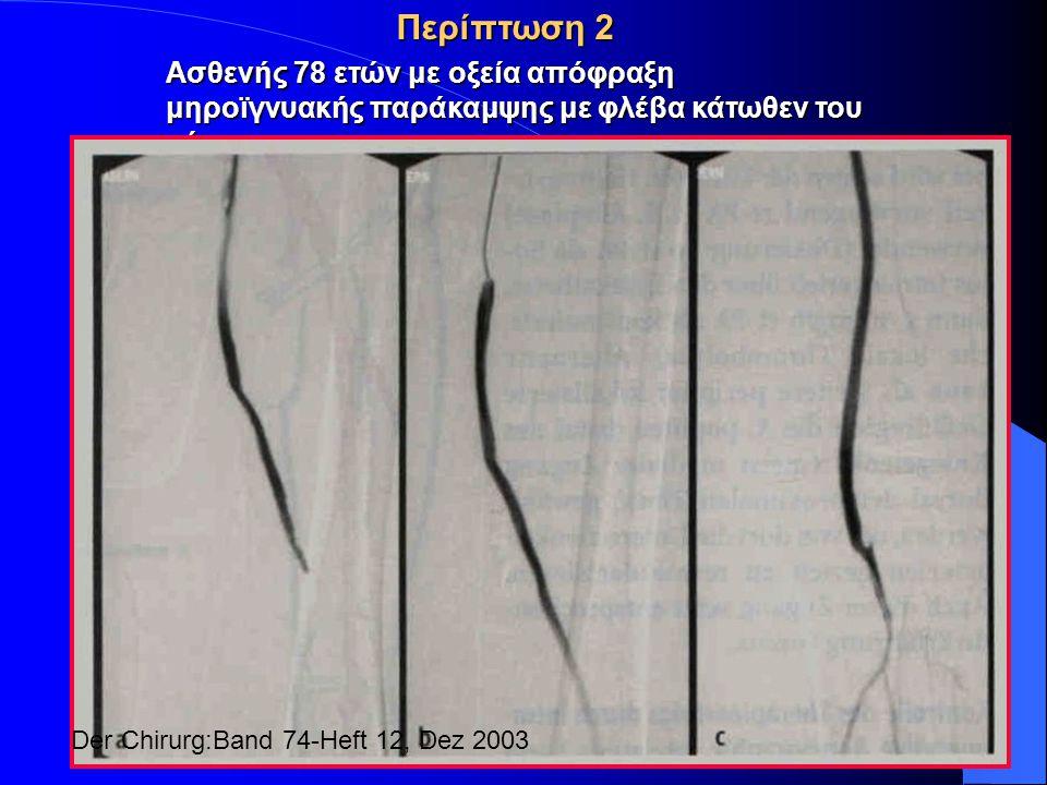 Περίπτωση 2 Ασθενής 78 ετών με οξεία απόφραξη μηροϊγνυακής παράκαμψης με φλέβα κάτωθεν του γόνατος Der Chirurg:Band 74-Heft 12, Dez 2003