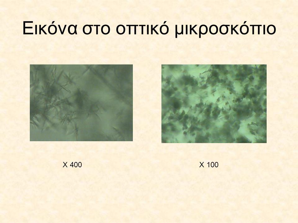 Εικόνα στο οπτικό μικροσκόπιο Χ 400Χ 100