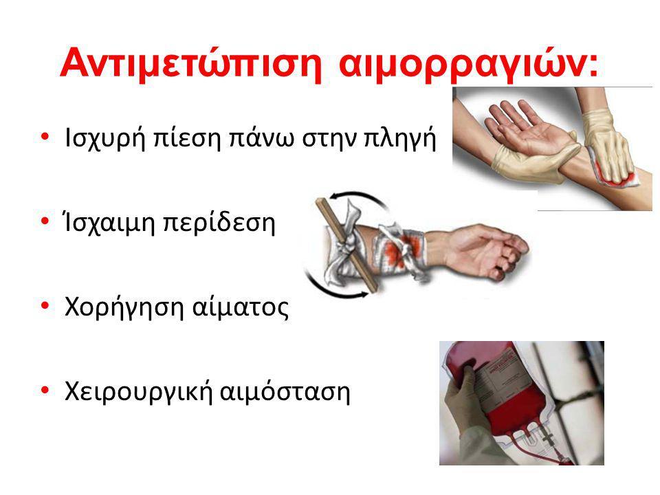 Αντιμετώπιση αιμορραγιών: Ισχυρή πίεση πάνω στην πληγή Ίσχαιμη περίδεση Χορήγηση αίματος Χειρουργική αιμόσταση