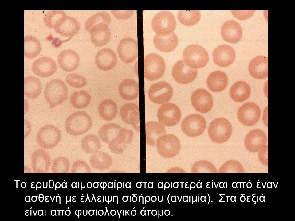 Τα ερυθρά αιμοσφαίρια στα αριστερά είναι από έναν ασθενή με έλλειψη σιδήρου (αναιμία). Στα δεξιά είναι από φυσιολογικό άτομο.