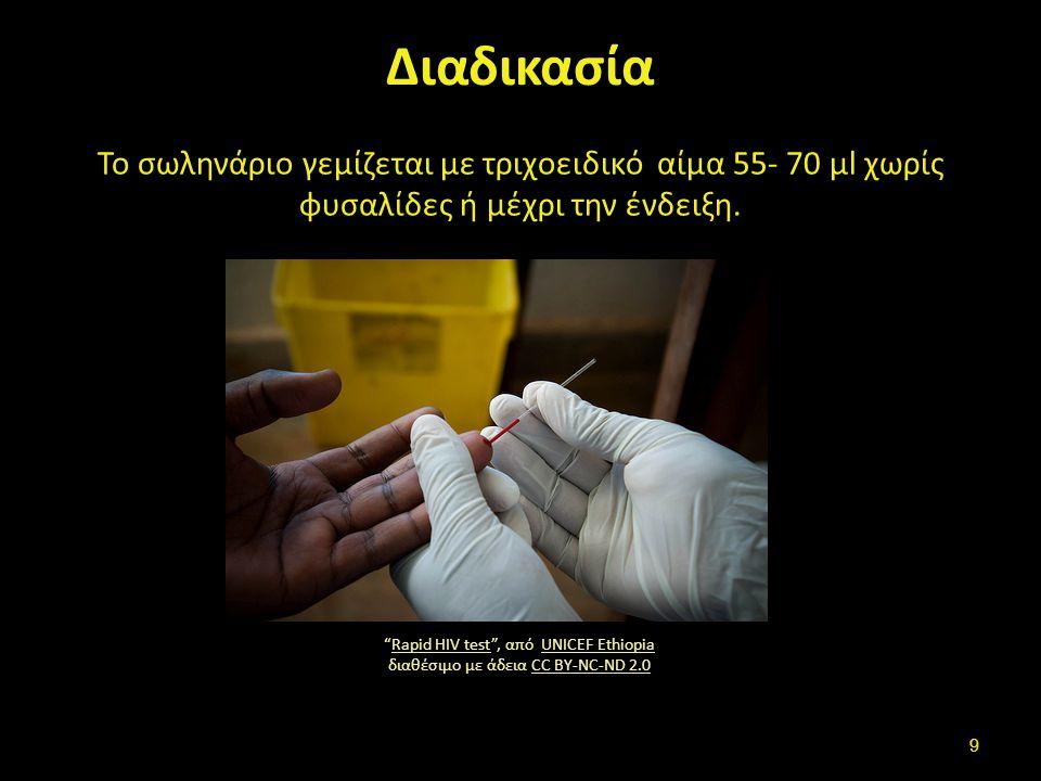 """Διαδικασία Το σωληνάριο γεμίζεται με τριχοειδικό αίμα 55- 70 μl χωρίς φυσαλίδες ή μέχρι την ένδειξη. """"Rapid HIV test"""", από UNICEF Ethiopia διαθέσιμο μ"""