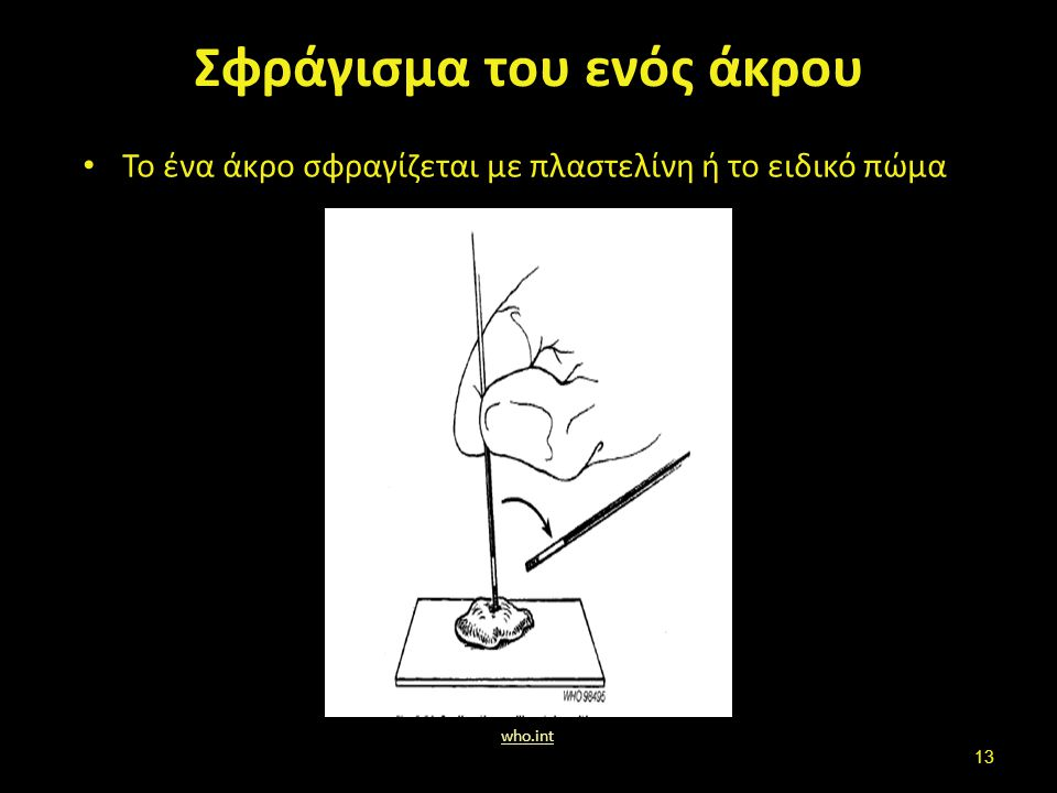 Σφράγισμα του ενός άκρου Το ένα άκρο σφραγίζεται με πλαστελίνη ή το ειδικό πώμα who.int 13