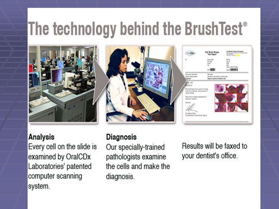 Ο ρόλος του CDx computer.