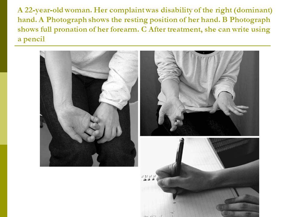 Α 22-year-old woman. Her complaint was disability of the right (dominant) hand.