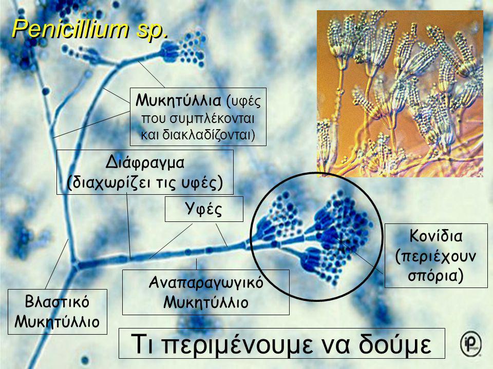 Τι περιμένουμε να δούμε Υφές Μυκητύλλια ( υφές που συμπλέκονται και διακλαδίζονται) Διάφραγμα (διαχωρίζει τις υφές) Βλαστικό Μυκητύλλιο Αναπαραγωγικό