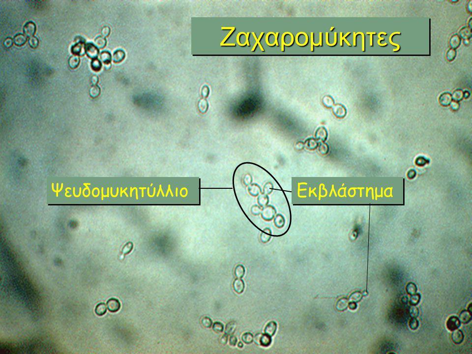 Εικόνες από το μαθητικό μικροσκόπιο Κονίδια (περιέχουν σπόρια) Υφές που δημιουργούν μυκητύλλια