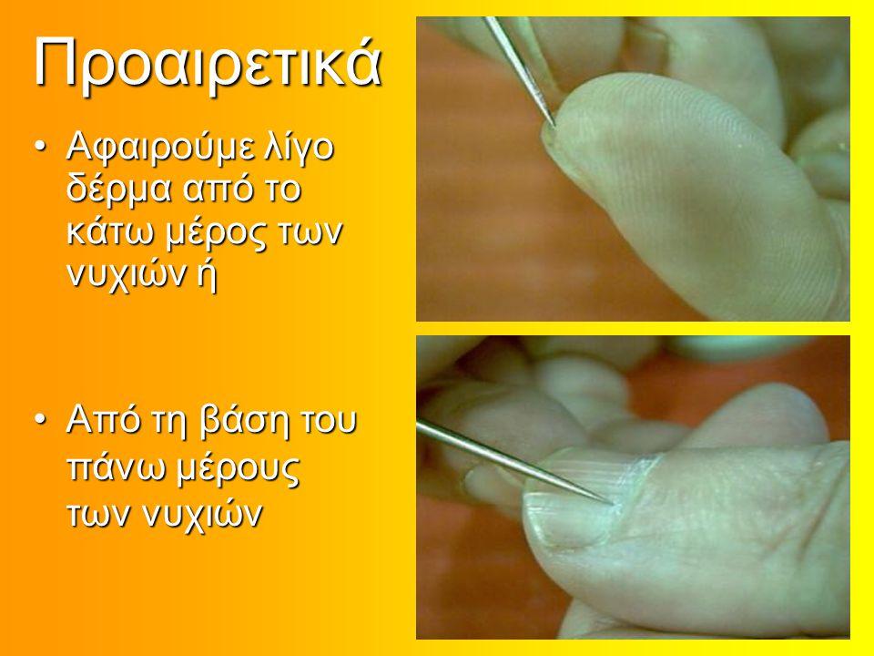 Προαιρετικά Αφαιρούμε λίγο δέρμα από το κάτω μέρος των νυχιών ήΑφαιρούμε λίγο δέρμα από το κάτω μέρος των νυχιών ή Από τη βάση του πάνω μέρους των νυχ