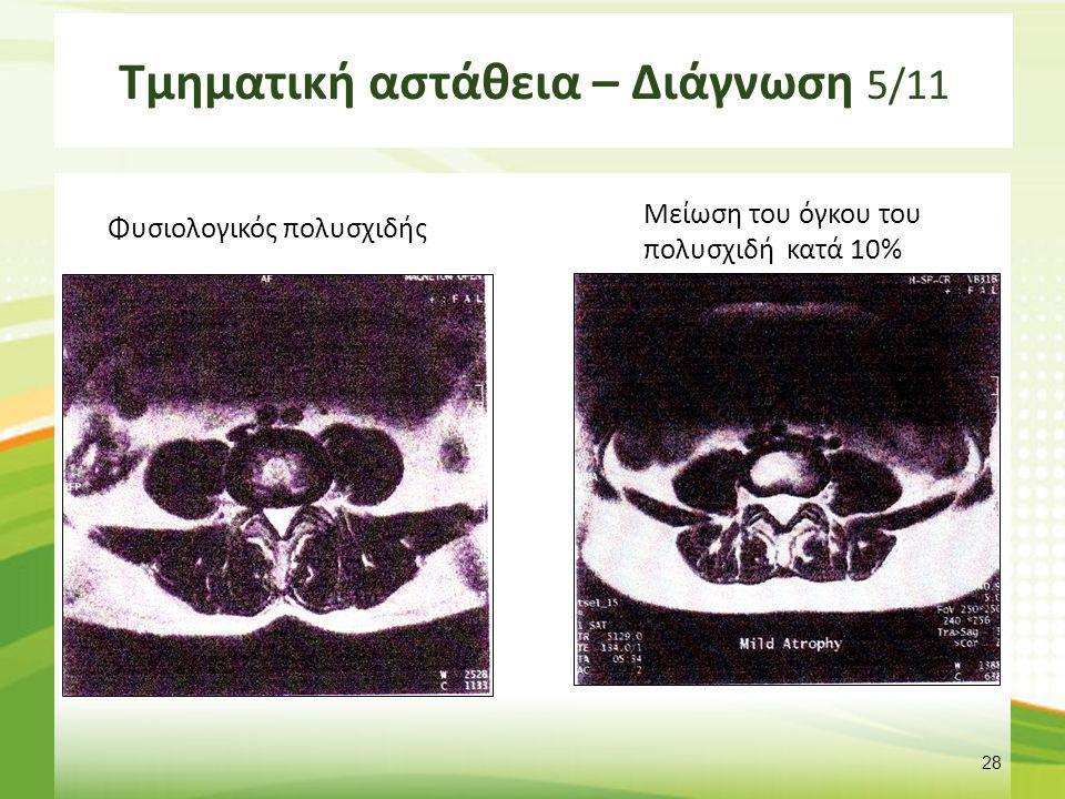 Τμηματική αστάθεια – Διάγνωση 5/11 Φυσιολογικός πολυσχιδής 28 Μείωση του όγκου του πολυσχιδή κατά 10%