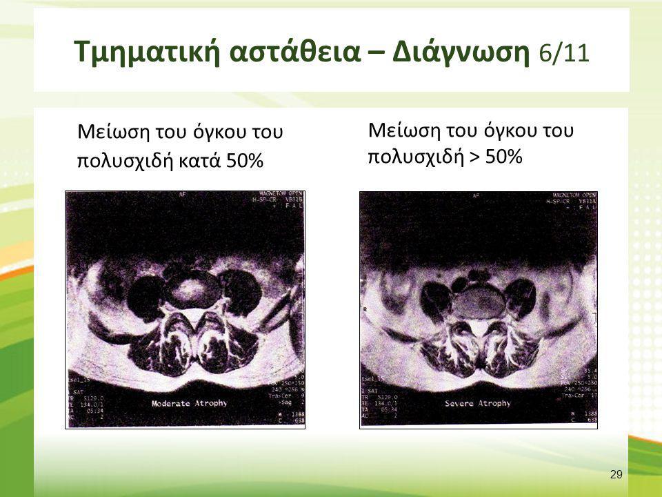 Τμηματική αστάθεια – Διάγνωση 6/11 Μείωση του όγκου του πολυσχιδή κατά 50% Μείωση του όγκου του πολυσχιδή > 50% 29