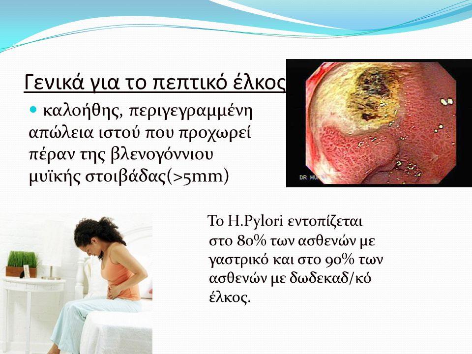 Γενικά για το πεπτικό έλκος καλοήθης, περιγεγραμμένη απώλεια ιστού που προχωρεί πέραν της βλενογόννιου μυϊκής στοιβάδας(>5mm) Το H.Pylori εντοπίζεται