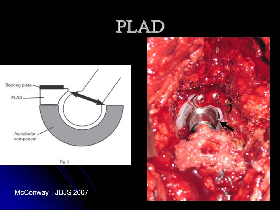 PLAD McConway, JBJS 2007