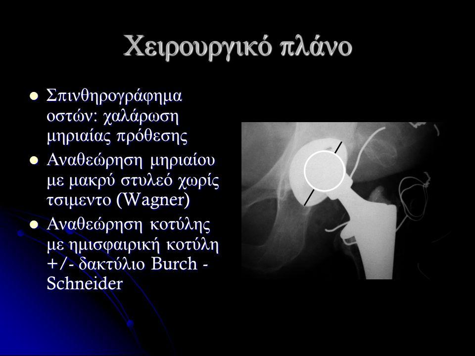 Χειρουργικό π λάνο Σ π ινθηρογράφημα οστών : χαλάρωση μηριαίας π ρόθεσης Σ π ινθηρογράφημα οστών : χαλάρωση μηριαίας π ρόθεσης Αναθεώρηση μηριαίου με μακρύ στυλεό χωρίς τσιμεντο (Wagner) Αναθεώρηση μηριαίου με μακρύ στυλεό χωρίς τσιμεντο (Wagner) Αναθεώρηση κοτύλης με ημισφαιρική κοτύλη +/- δακτύλιο Burch - Schneider Αναθεώρηση κοτύλης με ημισφαιρική κοτύλη +/- δακτύλιο Burch - Schneider