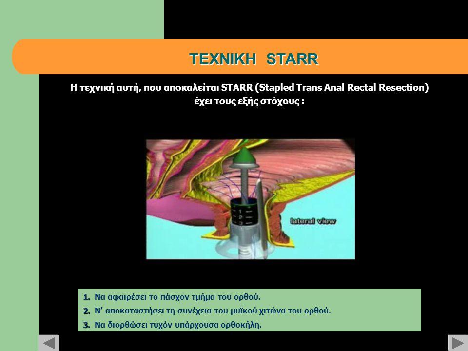 ΤΕΧΝΙΚΗ STARR Η τεχνική αυτή, που αποκαλείται STARR (Stapled Trans Αnal Rectal Resection) έχει τους εξής στόχους : 1. 1. Να αφαιρέσει το πάσχον τμήμα