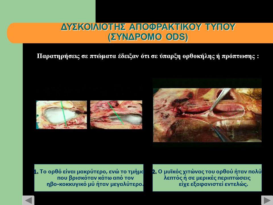 ΔΥΣΚΟΙΛΙΟΤΗΣ ΑΠΟΦΡΑΚΤΙΚΟΥ ΤΥΠΟΥ (ΣΥΝΔΡΟΜΟ ODS) 1. 1. Το ορθό είναι μακρύτερο, ενώ το τμήμα που βρισκόταν κάτω από τον ηβο-κοκκυγικό μύ ήταν μεγαλύτερο