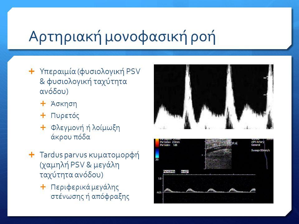 Αρτηριακή μονοφασική ροή  Υπεραιμία (φυσιολογική PSV & φυσιολογική ταχύτητα ανόδου)  Άσκηση  Πυρετός  Φλεγμονή ή λοίμωξη άκρου πόδα  Tardus parvu