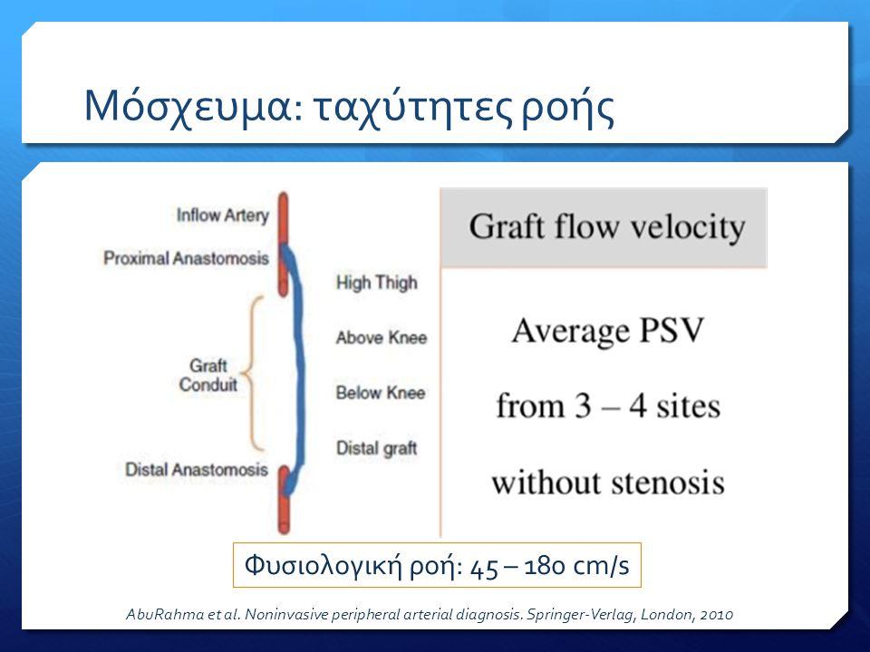 Μόσχευμα: ταχύτητες ροής Φυσιολογική ροή: 45 – 180 cm/s AbuRahma et al. Noninvasive peripheral arterial diagnosis. Springer-Verlag, London, 2010