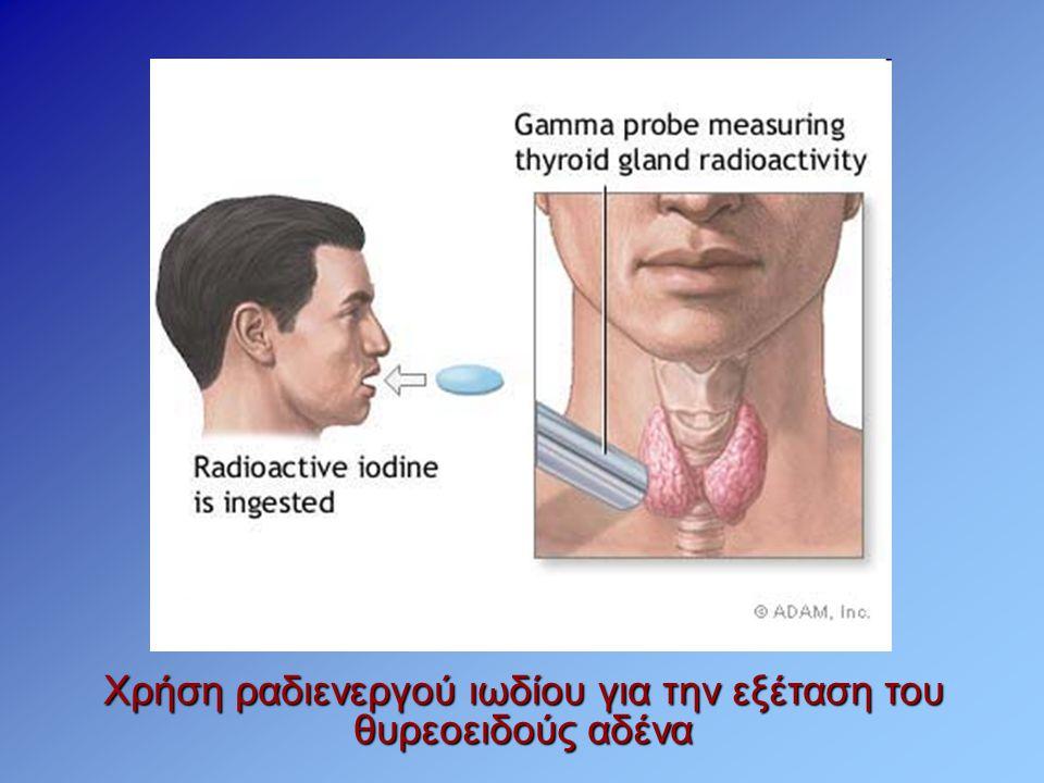 Χρήση ραδιενεργού ιωδίου για την εξέταση του θυρεοειδούς αδένα