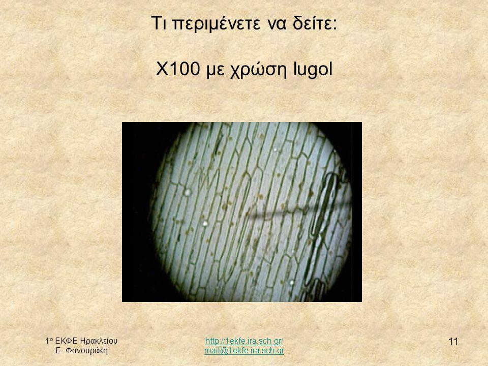 1 ο ΕΚΦΕ Ηρακλείου Ε. Φανουράκη http://1ekfe.ira.sch.gr/ mail@1ekfe.ira.sch.gr 11 Τι περιμένετε να δείτε: Χ100 με χρώση lugol