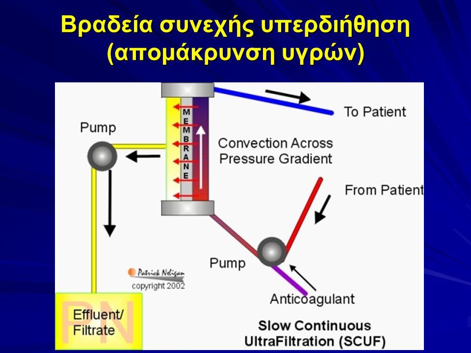 Βραδεία συνεχής υπερδιήθηση (απομάκρυνση υγρών)