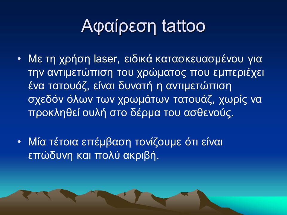Αφαίρεση tattoo Με τη χρήση laser, ειδικά κατασκευασμένου για την αντιμετώπιση του χρώματος που εμπεριέχει ένα τατουάζ, είναι δυνατή η αντιμετώπιση σχεδόν όλων των χρωμάτων τατουάζ, χωρίς να προκληθεί ουλή στο δέρμα του ασθενούς.