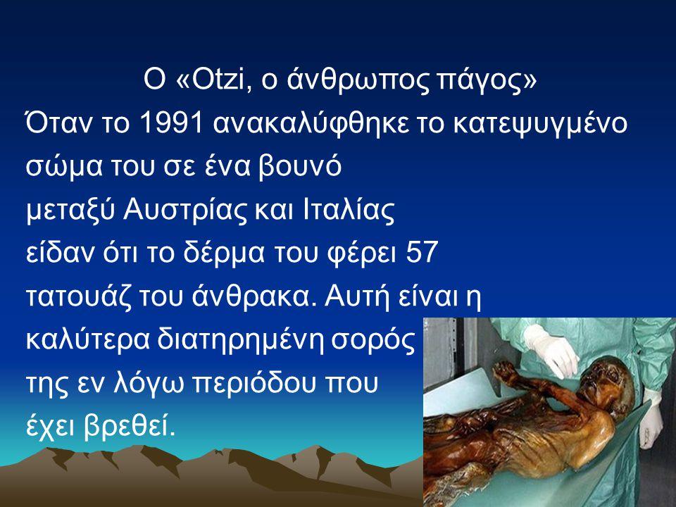 Ο «Οtzi, ο άνθρωπος πάγος» Όταν το 1991 ανακαλύφθηκε το κατεψυγμένο σώμα του σε ένα βουνό μεταξύ Αυστρίας και Ιταλίας είδαν ότι το δέρμα του φέρει 57 τατουάζ του άνθρακα.