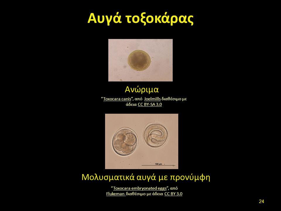 """Αυγά τοξοκάρας Ανώριμα """"Toxocara canis"""", από Joelmills διαθέσιμο με άδεια CC BY-SA 3.0Toxocara canisJoelmillsCC BY-SA 3.0 Μολυσματικά αυγά με προνύμφη"""