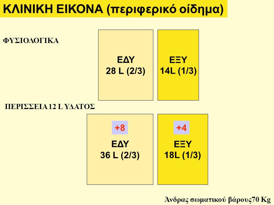 ΦΥΣΙΟΛΟΓΙΚΑ ΠΕΡΙΣΣΕΙΑ 12 L ΥΔΑΤΟΣ ΕΔΥ 36 L (2/3) ΕΞΥ 18L (1/3) ΕΔΥ 28 L (2/3) ΕΞΥ 14L (1/3) +8+4 ΚΛΙΝΙΚΗ ΕΙΚΟΝΑ (περιφερικό οίδημα) Άνδρας σωματικού βάρους70 Kg