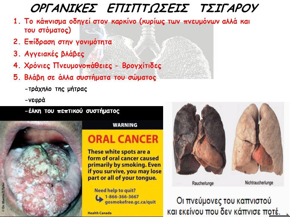 ΟΡΓΑΝΙΚΕΣ ΕΠΙΠΤΩΣΕΙΣ ΤΣΙΓΑΡΟΥ 1.Το κάπνισμα οδηγεί στον καρκίνο (κυρίως των πνευμόνων αλλά και του στόματος) 2.Επίδραση στην γονιμότητα 3.Αγγειακές βλ