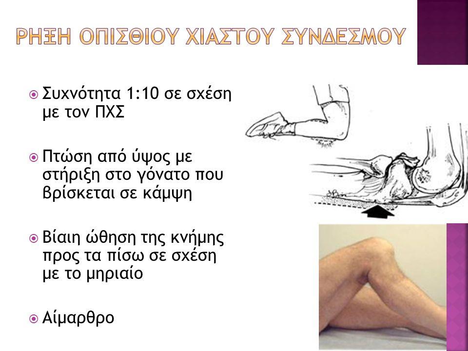 Συχνότητα 1:10 σε σχέση με τον ΠΧΣ  Πτώση από ύψος με στήριξη στο γόνατο που βρίσκεται σε κάμψη  Βίαιη ώθηση της κνήμης προς τα πίσω σε σχέση με τ