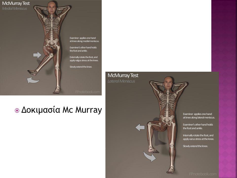  Δοκιμασία Mc Murray