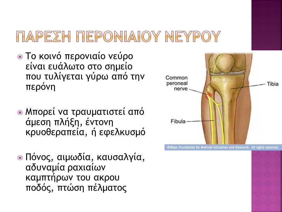  Το κοινό περονιαίο νεύρο είναι ευάλωτο στο σημείο που τυλίγεται γύρω από την περόνη  Μπορεί να τραυματιστεί από άμεση πλήξη, έντονη κρυοθεραπεία, ή