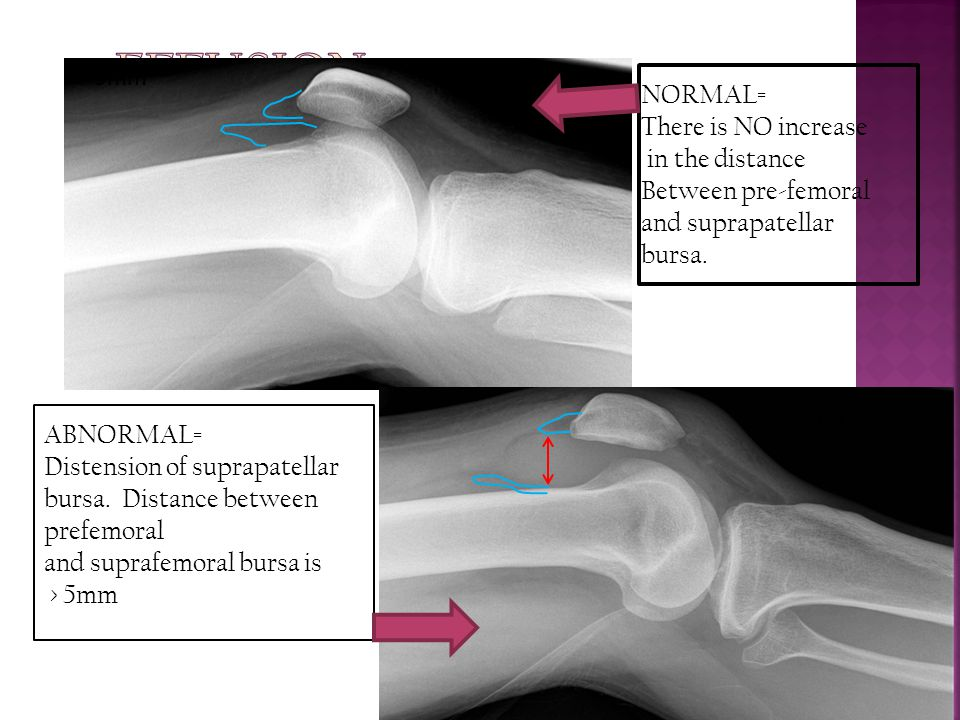 NORMAL= There is NO increase in the distance Between pre-femoral and suprapatellar bursa. ABNORMAL= Distension of suprapatellar bursa. Distance betwee