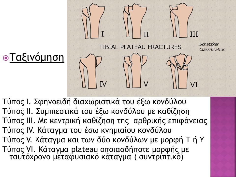  Ταξινόμηση Τύπος Ι. Σφηνοειδή διαχωριστικά του έξω κονδύλου Τύπος ΙΙ. Συμπιεστικά του έξω κονδύλου με καθίζηση Τύπος ΙΙΙ. Με κεντρική καθίζηση της α