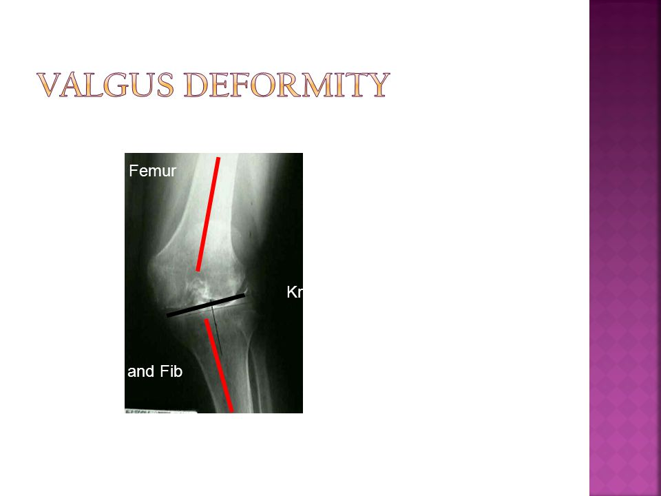 Femur Tib and Fib Knee Joint More common in females. In valgus knee, ligament balancing is more difficult to fix.
