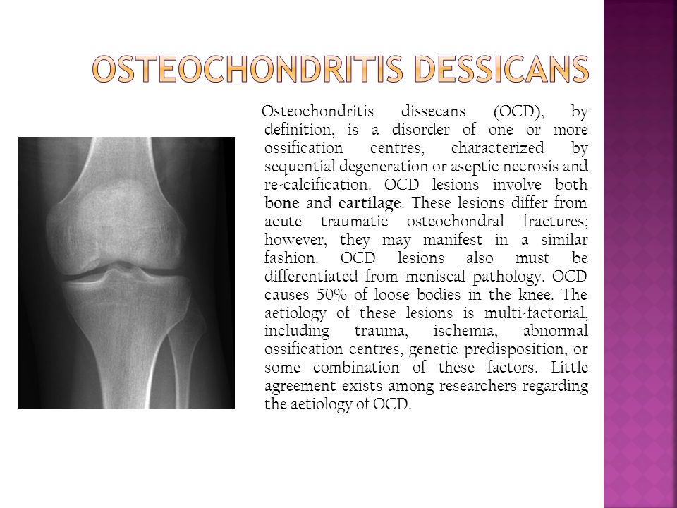 Osteochondritis dissecans (OCD), by definition, is a disorder of one or more ossification centres, characterized by sequential degeneration or aseptic