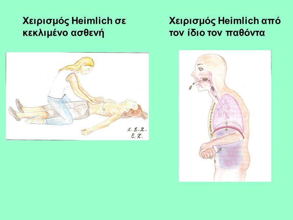 Χειρισμός Heimlich σε κεκλιμένο ασθενή Χειρισμός Heimlich από τον ίδιο τον παθόντα