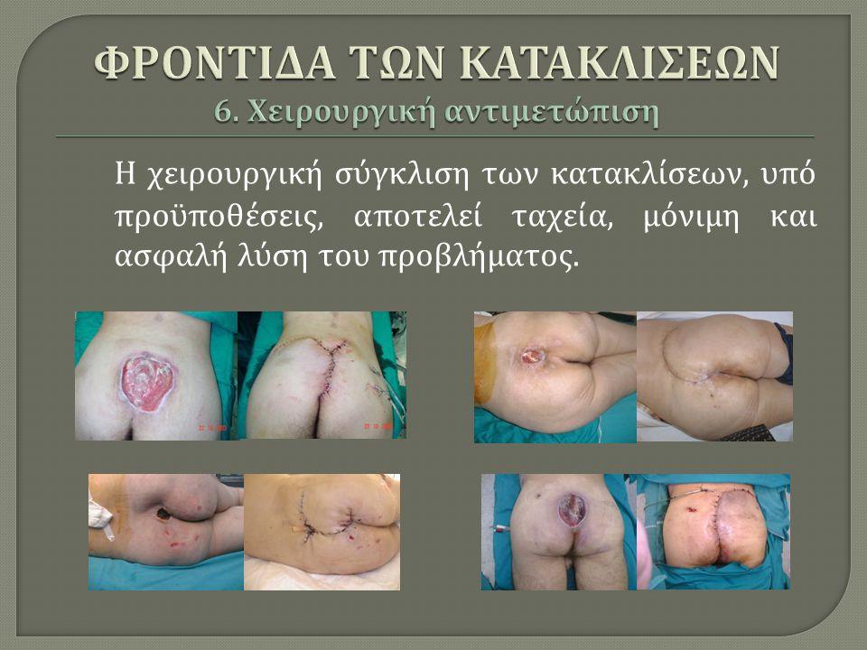 Η χειρουργική σύγκλιση των κατακλίσεων, υπό προϋποθέσεις, αποτελεί ταχεία, μόνιμη και ασφαλή λύση του προβλήματος.