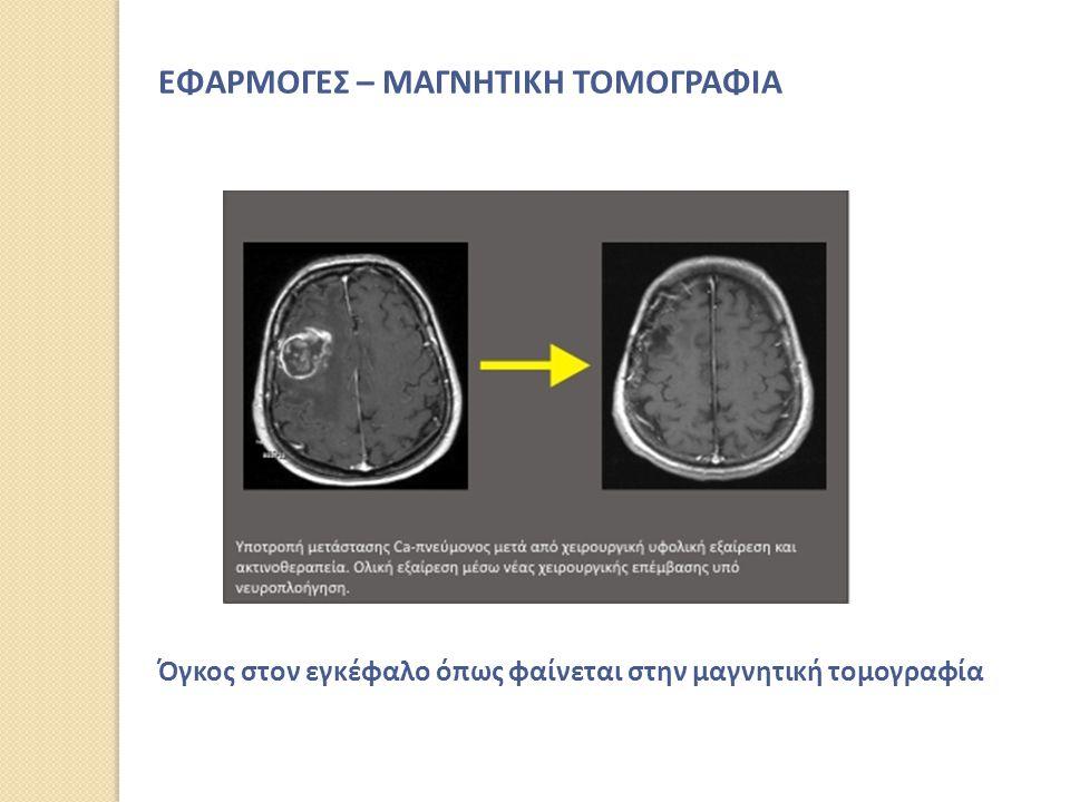 Όγκος στον εγκέφαλο όπως φαίνεται στην μαγνητική τομογραφία ΕΦΑΡΜΟΓΕΣ – ΜΑΓΝΗΤΙΚΗ ΤΟΜΟΓΡΑΦΙΑ