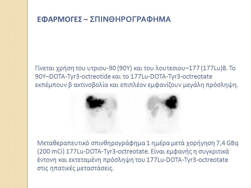 Γίνεται χρήση του υτριου‐90 (90Y) και του λουτεσιου–177 (177Lu)8. Το 90Y–DOTA‐Tyr3‐octreotide και το 177Lu‐DOTA‐Tyr3‐octreotate εκπέμπουν β ακτινοβολί