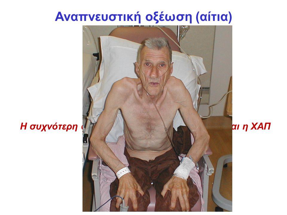Αναπνευστική οξέωση (αίτια) Η συχνότερη αιτία αναπνευστικής οξέωσης είναι η ΧΑΠ
