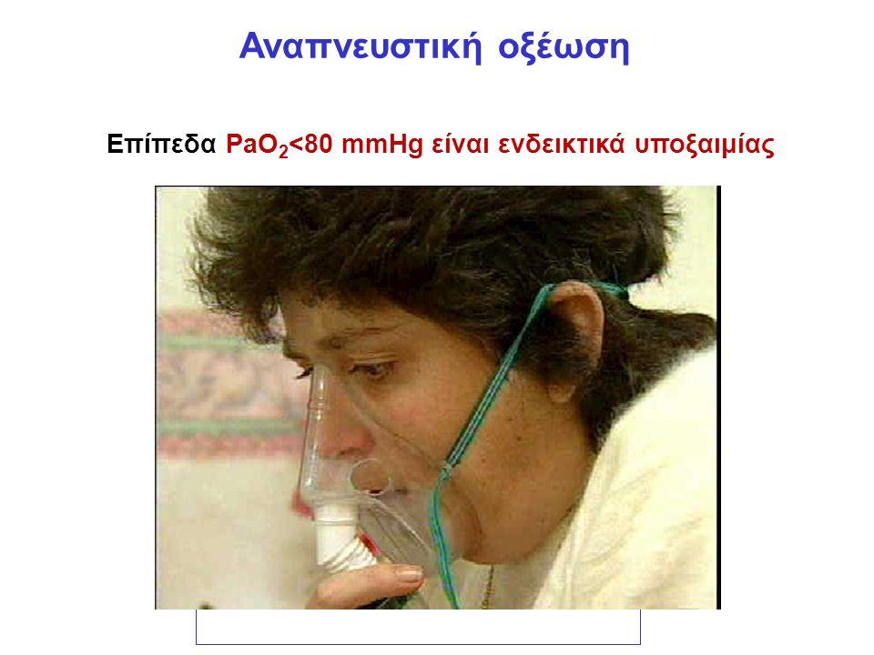 Αναπνευστική οξέωση Επίπεδα PaO 2 <80 mmHg είναι ενδεικτικά υποξαιμίας pH=6,1 + log HCO 3 - 0,03 x PaCO 2